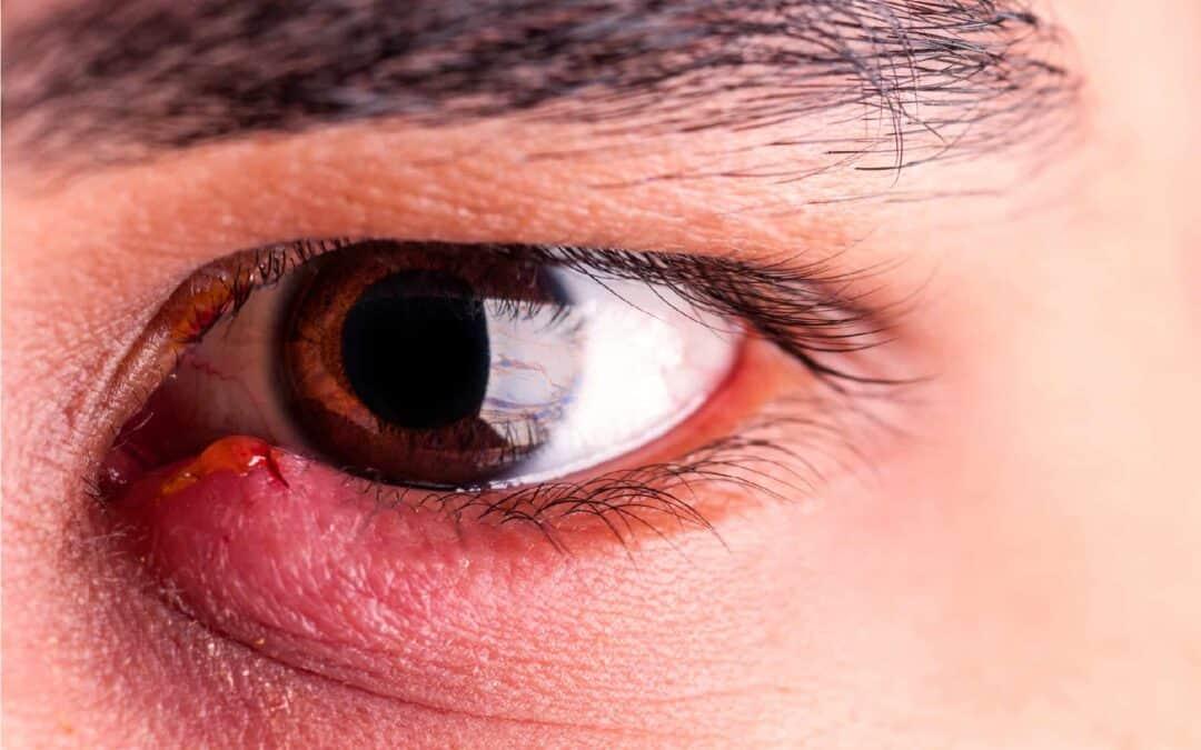 sore-eyelids